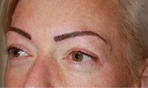 2 Eye lash _ brow After