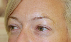 2 Eye lash _ brow Before