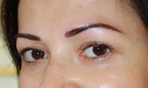 3 Eyebrow After
