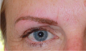 4 Eyebrow After