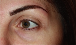 4 Eyebrow - After