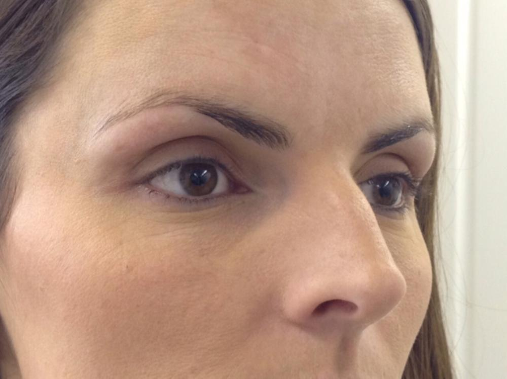 Before & After Images of Permanent Makeup by Elite Brows